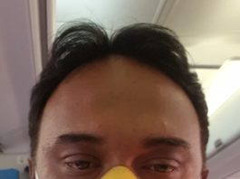 Satish Nayer bleeding on Jet Airways